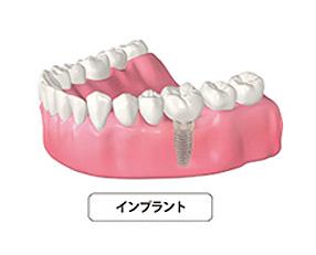 implant02