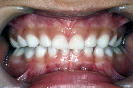 歯の治療中は、目を開けますか?閉じます ...