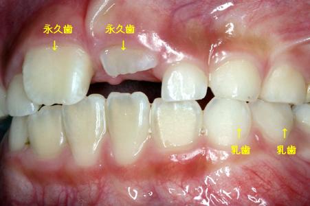生え変わった永久歯が黄色いよう...
