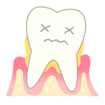 periodontosis_mechanism04-150x150