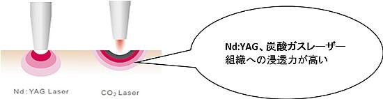 ndyag_co2